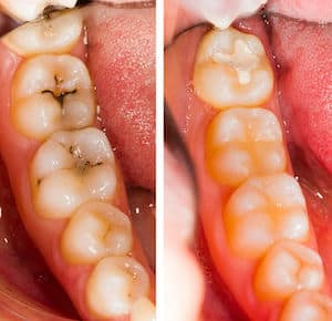 importance of brushing your teeth