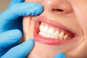 prevent damage done to your teeth
